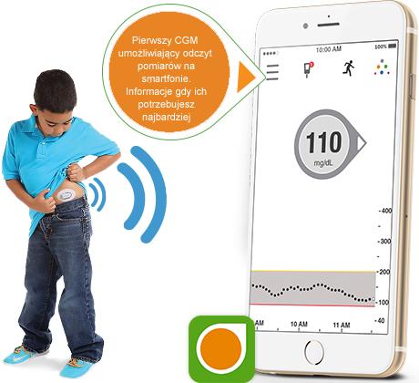 dexcom-g5-mobile-cukrzyca